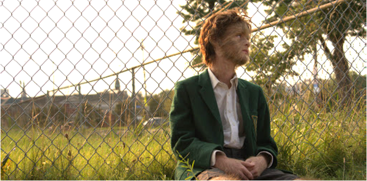 A still from 'The True Adventures of Wolfboy'. Paul Harker (Jaeden Martell)  is show just off centre frame, looking out to the right. He is sat down against a fence, a meadow and large tree are behind him. Paul is a teenage boy wearing a school uniform complete with green blazer. His face is covered in hair resembling some kind of Wolf, so it is hard to distinguish his features.
